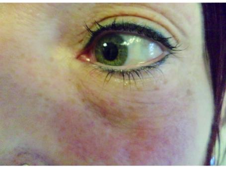 案例-眼周術後